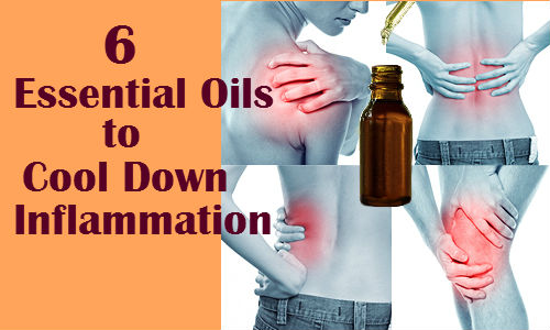 6 Essential Oils to Down Inflammation pic